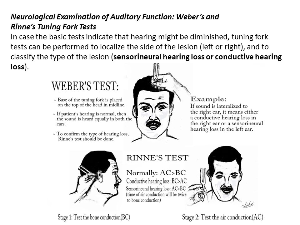Neurological Examination of Auditory Function: Weber's and