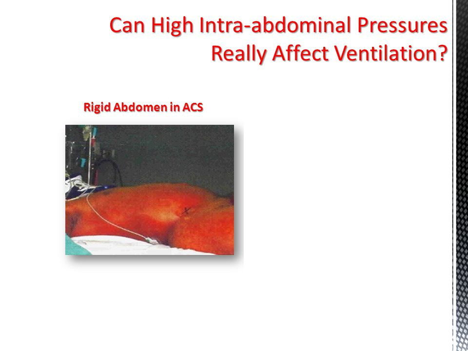 Can High Intra-abdominal Pressures Really Affect Ventilation