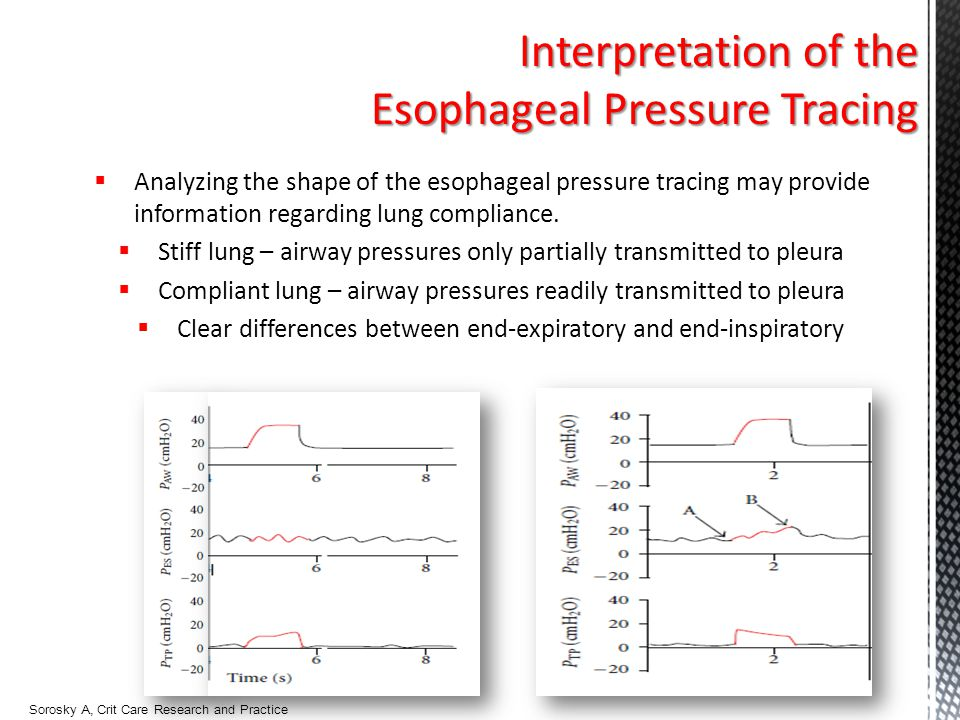 Esophageal Pressure Tracing
