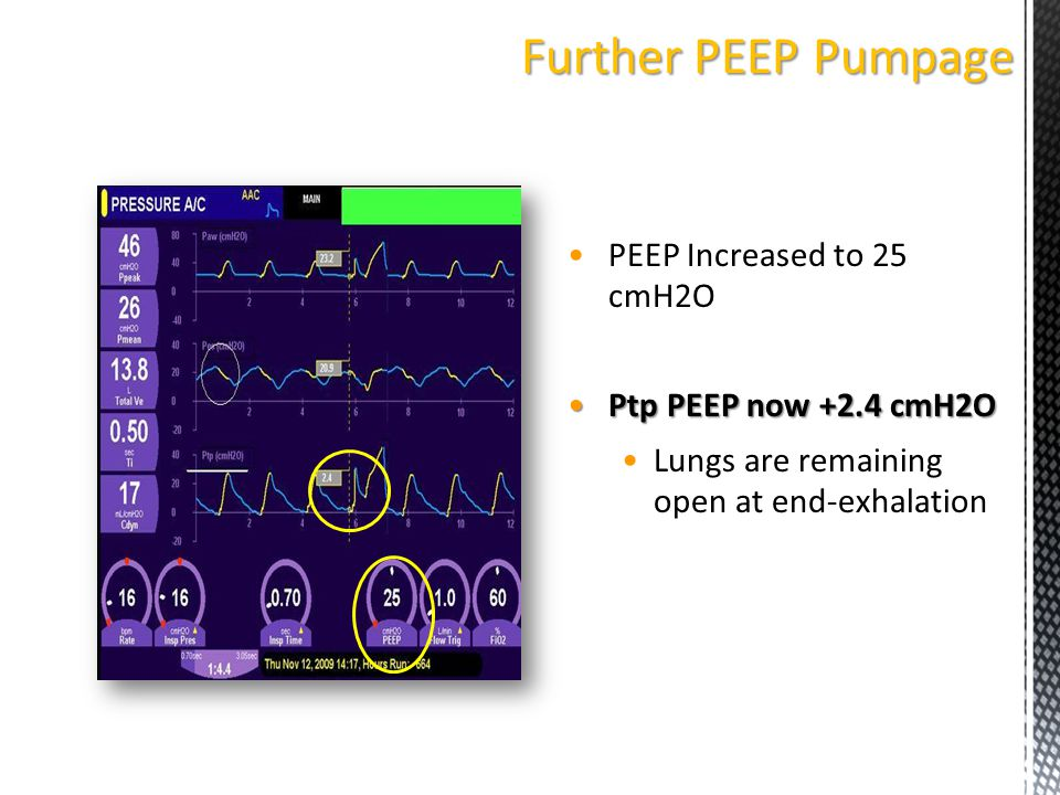 Further PEEP Pumpage PEEP Increased to 25 cmH2O