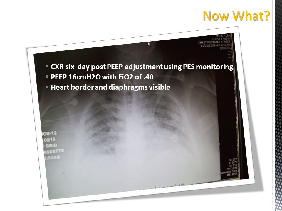 Now What CXR six day post PEEP adjustment using PES monitoring