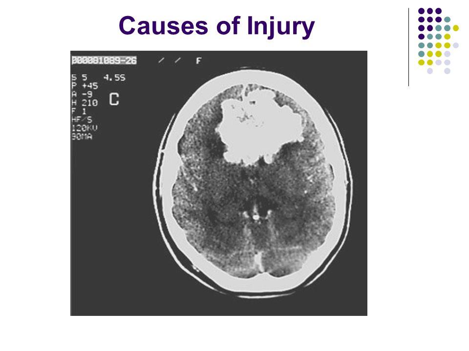 Causes of Injury