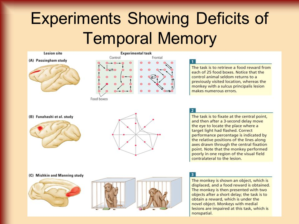 Experiments Showing Deficits of Temporal Memory