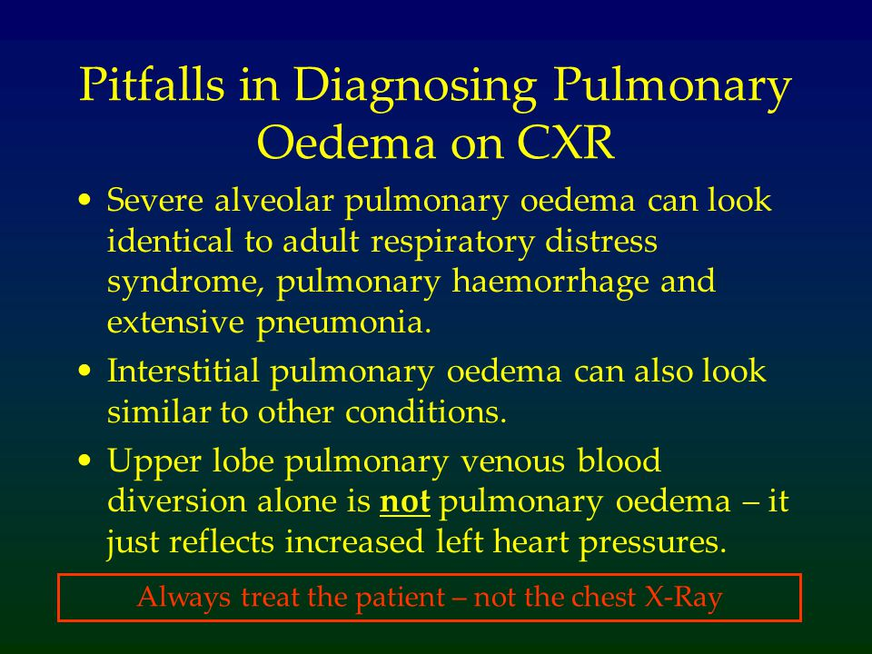 Pitfalls in Diagnosing Pulmonary Oedema on CXR