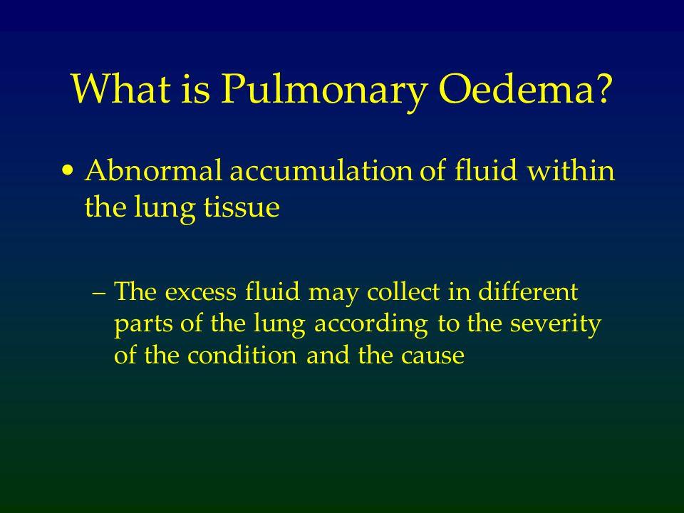 What is Pulmonary Oedema