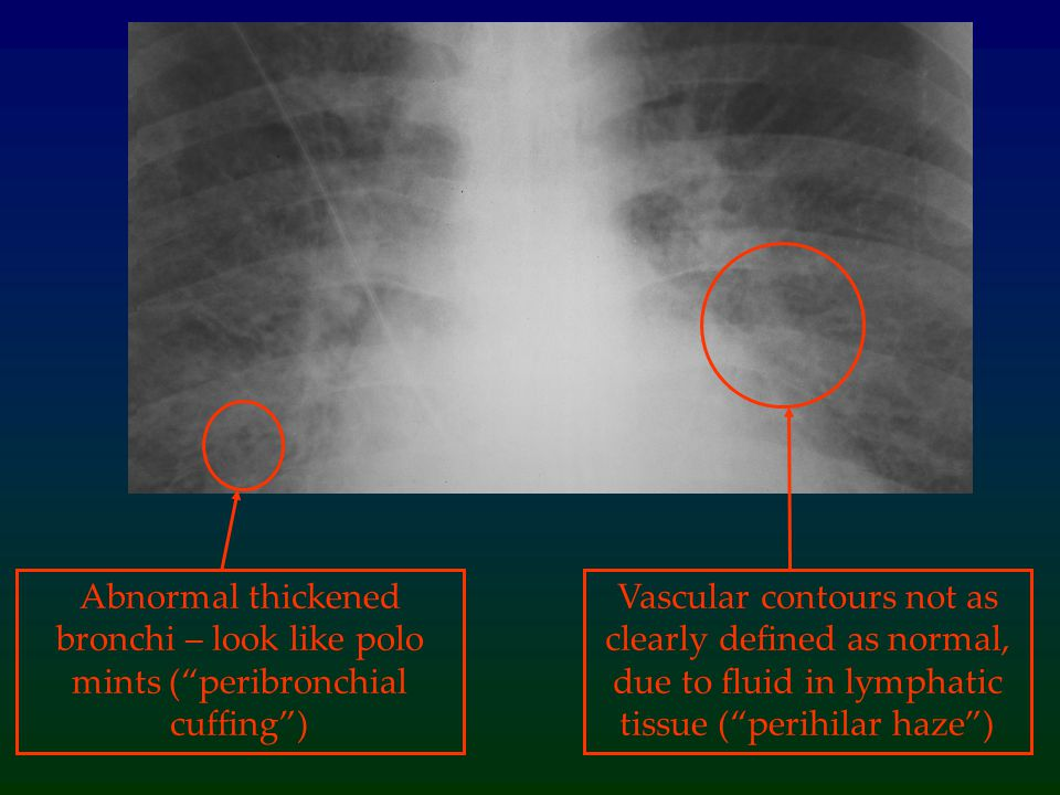 Abnormal thickened bronchi – look like polo mints ( peribronchial cuffing )