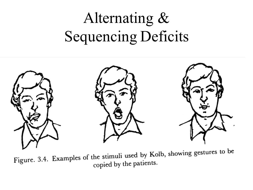 Alternating & Sequencing Deficits
