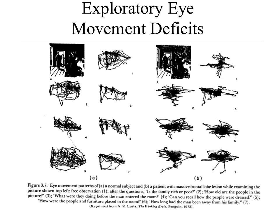 Exploratory Eye Movement Deficits