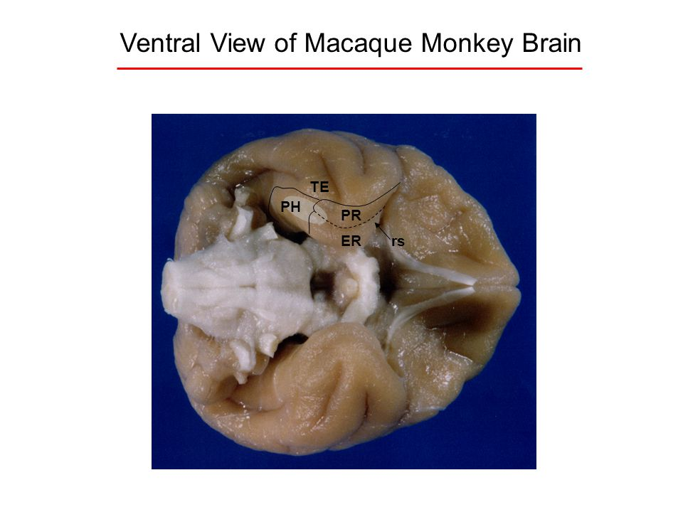 Ventral View of Macaque Monkey Brain