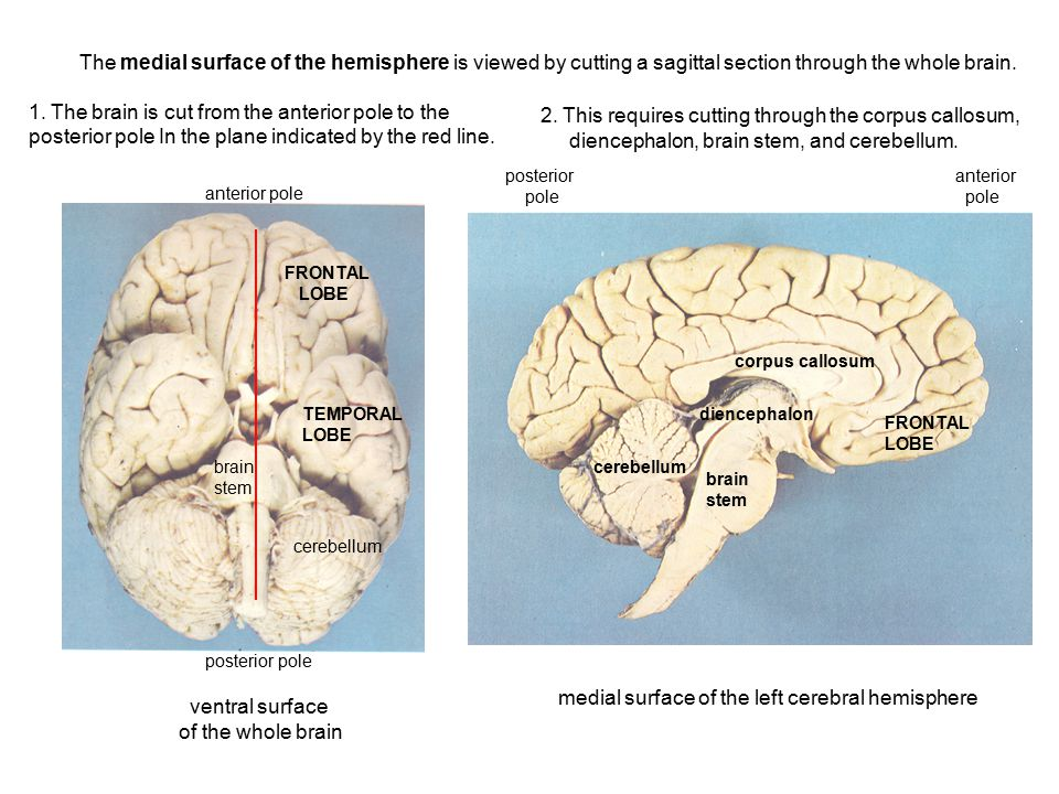 1. The brain is cut from the anterior pole to the