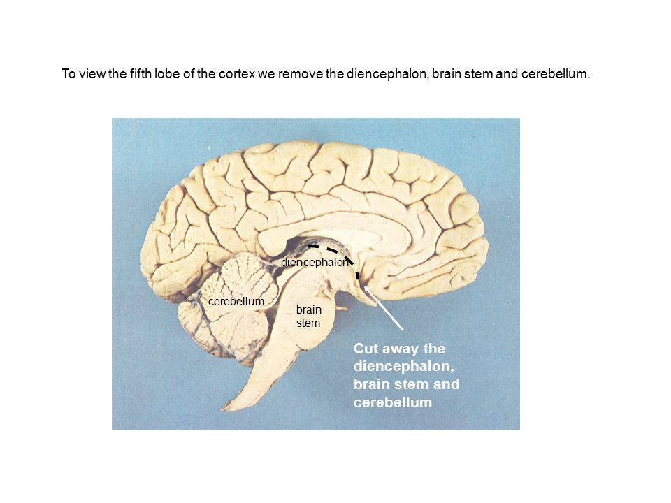 Cut away the diencephalon, brain stem and cerebellum