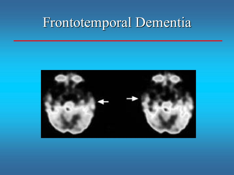Frontotemporal Dementia