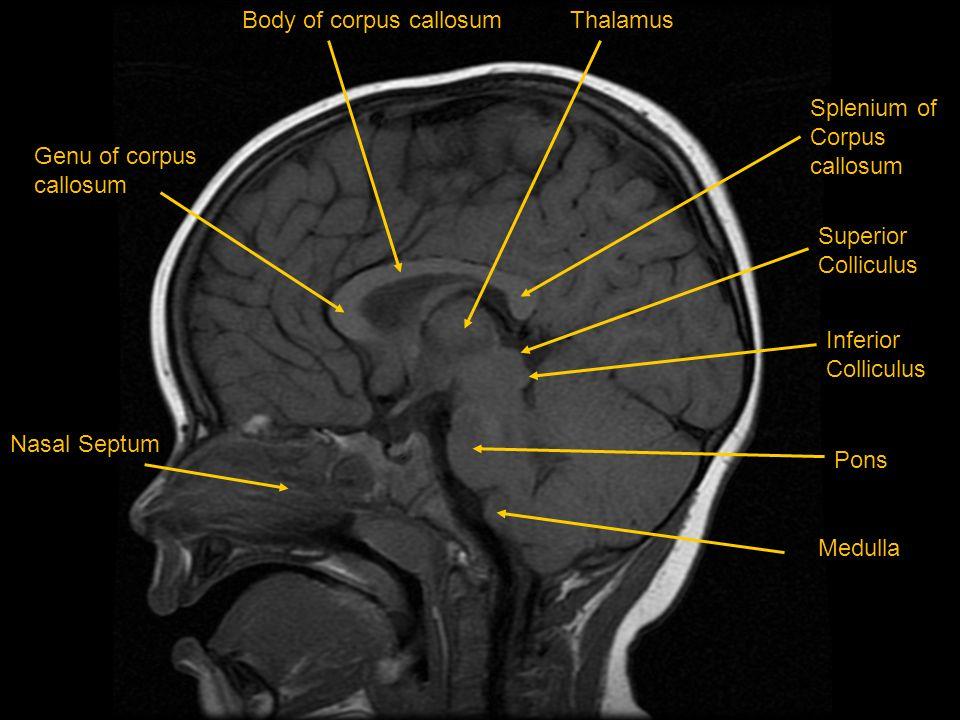 Body of corpus callosum Thalamus
