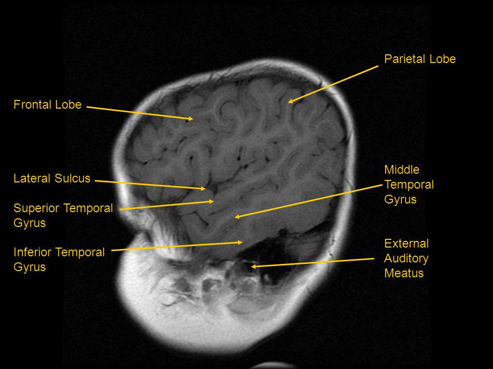 Parietal Lobe Middle Temporal Gyrus. External Auditory Meatus. Frontal Lobe. Lateral Sulcus. Superior Temporal.