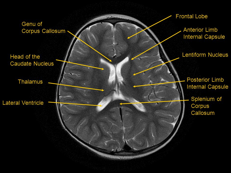 Frontal Lobe Genu of. Corpus Callosum. Anterior Limb. Internal Capsule. Lentiform Nucleus. Head of the.