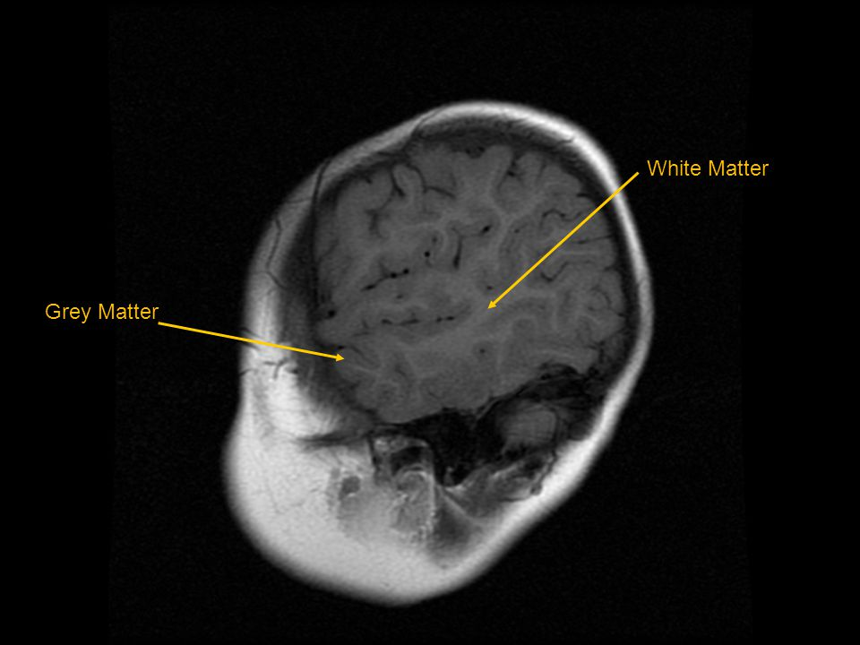 White Matter Grey Matter