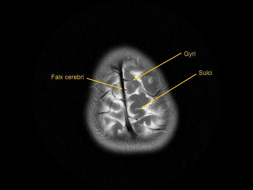 Gyri Sulci Falx cerebri