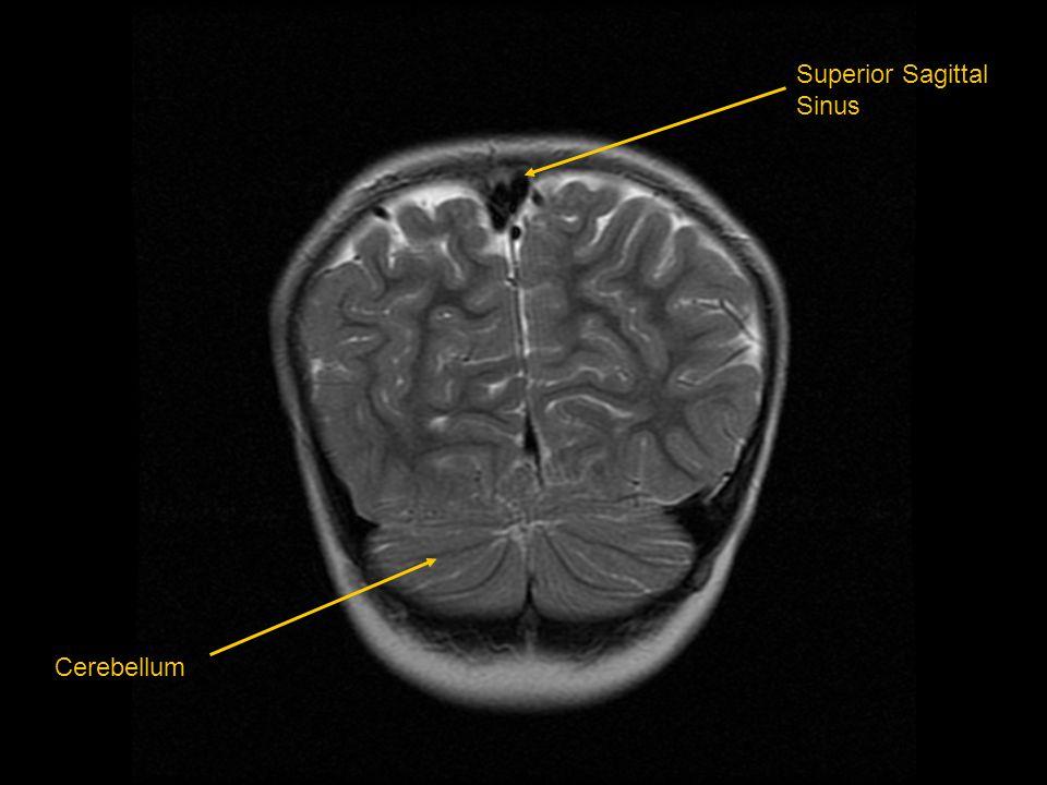 Superior Sagittal Sinus Cerebellum