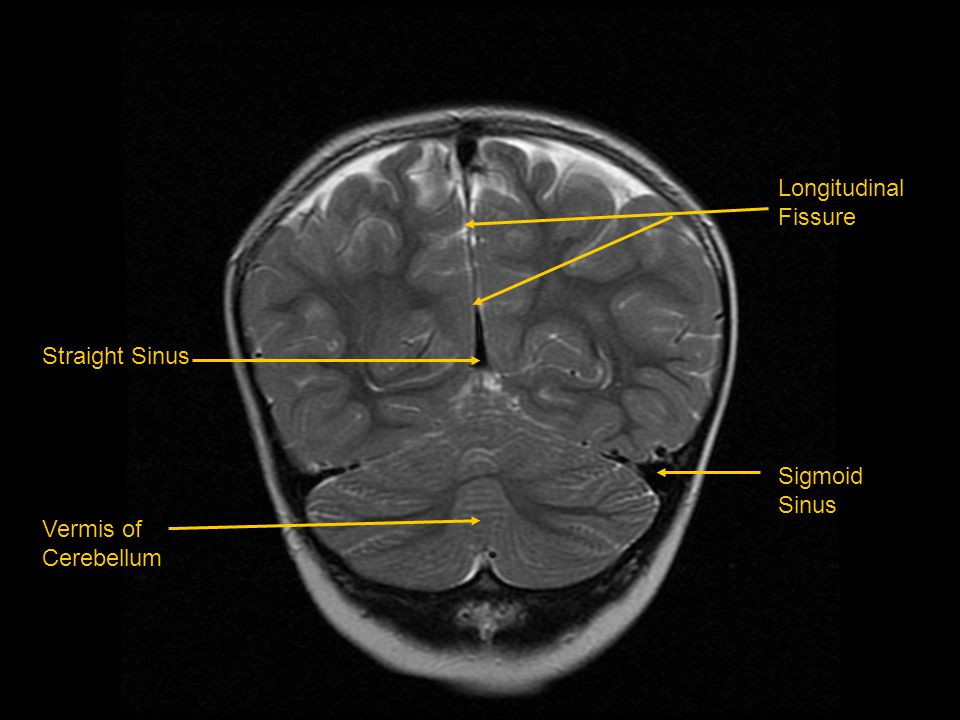 Longitudinal Fissure Sigmoid Sinus Straight Sinus Vermis of Cerebellum