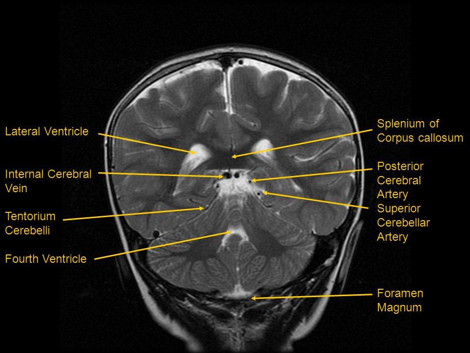 Splenium of Corpus callosum. Posterior. Cerebral. Artery. Superior. Cerebellar. Foramen. Magnum.