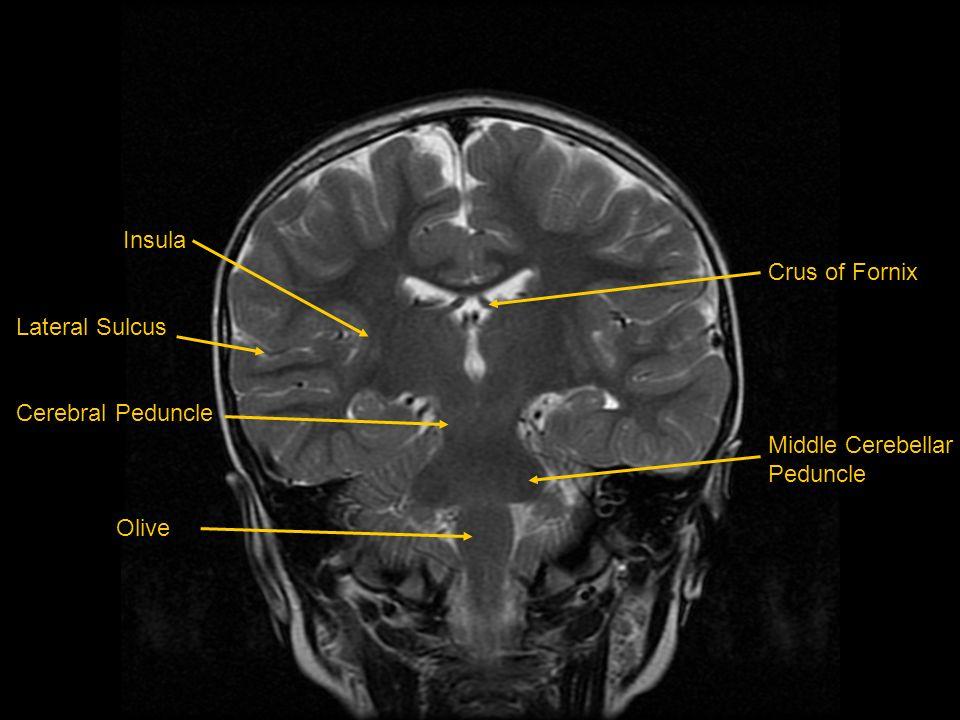 Insula Lateral Sulcus Cerebral Peduncle Olive Crus of Fornix Middle Cerebellar Peduncle
