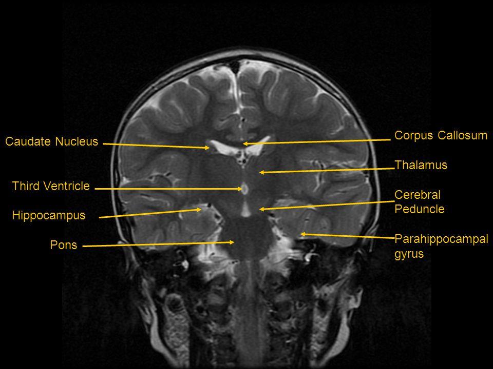 Corpus Callosum Thalamus. Cerebral. Peduncle. Parahippocampal. gyrus. Caudate Nucleus. Third Ventricle.
