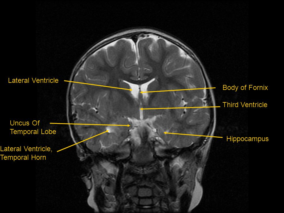 Lateral Ventricle Uncus Of. Temporal Lobe. Lateral Ventricle, Temporal Horn. Body of Fornix. Third Ventricle.