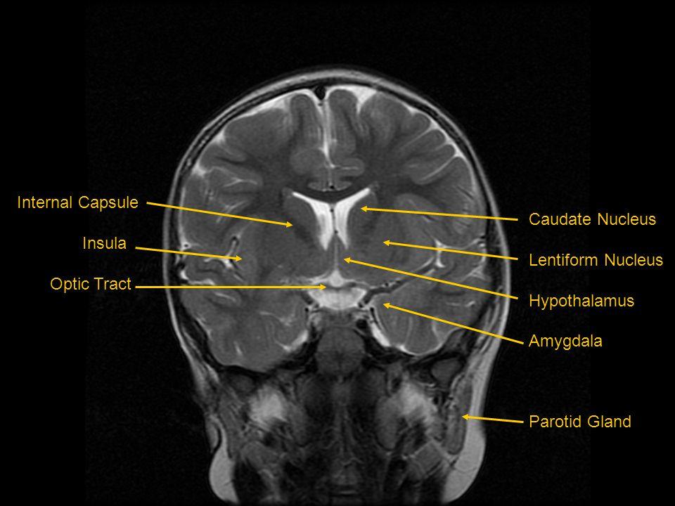 Internal Capsule Insula. Optic Tract. Caudate Nucleus. Lentiform Nucleus. Hypothalamus. Amygdala.