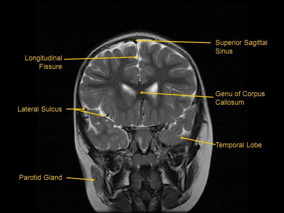 Superior Sagittal Sinus. Genu of Corpus. Callosum. Temporal Lobe. Longitudinal. Fissure. Lateral Sulcus.