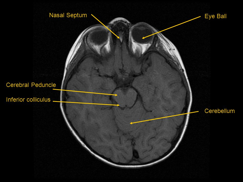 Nasal Septum Eye Ball Cerebellum Cerebral Peduncle Inferior colliculus