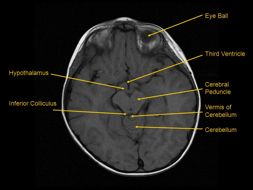 Eye Ball Third Ventricle Cerebral Peduncle Vermis of Cerebellum Hypothalamus Inferior Colliculus