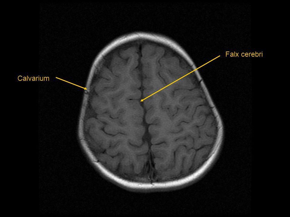 Falx cerebri Calvarium