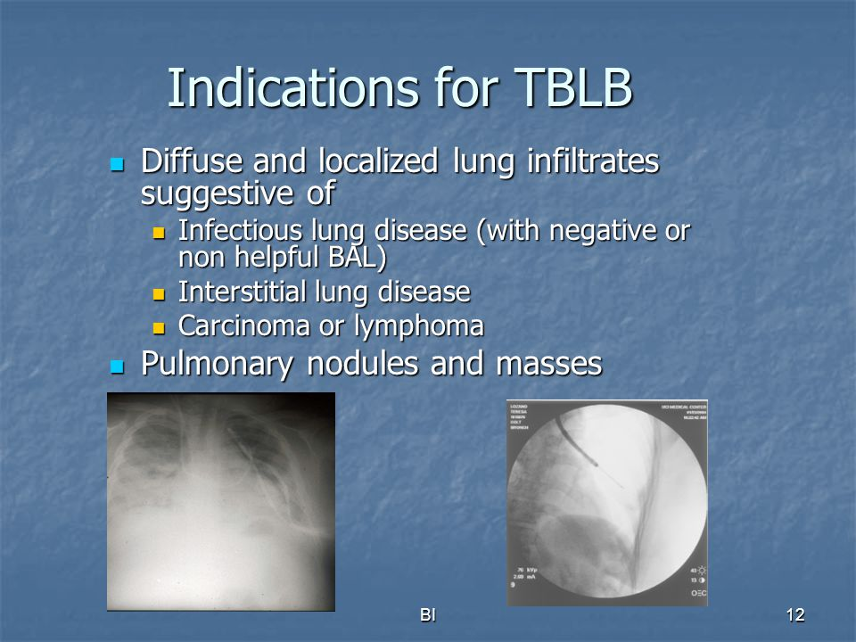 Indications for TBLB Diffuse and localized lung infiltrates suggestive of. Infectious lung disease (with negative or non helpful BAL)