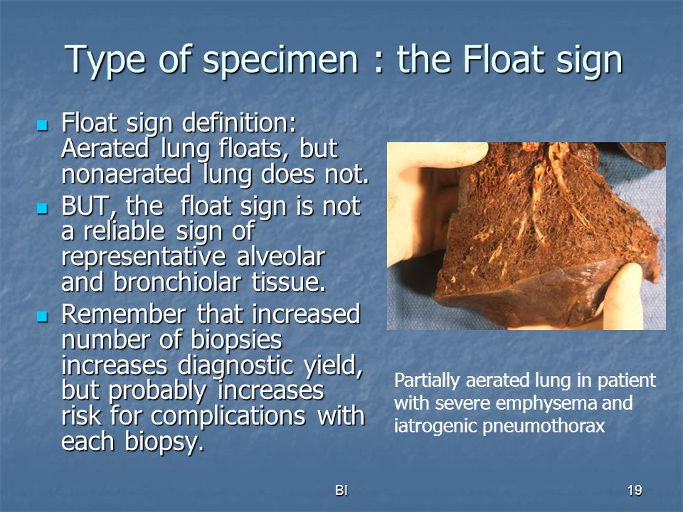 Type of specimen : the Float sign
