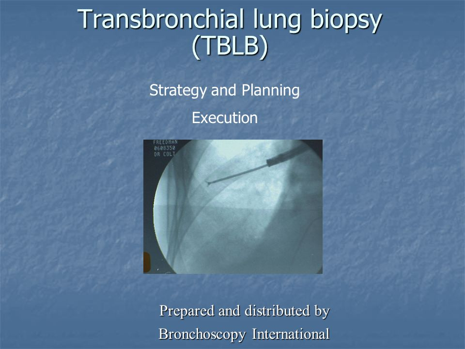 Transbronchial lung biopsy (TBLB)