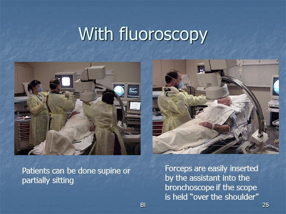 With fluoroscopy Forceps are easily inserted by the assistant into the bronchoscope if the scope is held over the shoulder