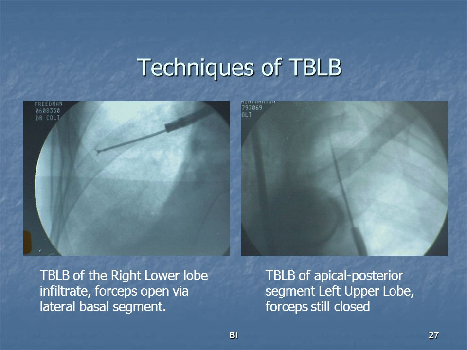 Techniques of TBLB TBLB of the Right Lower lobe infiltrate, forceps open via lateral basal segment.
