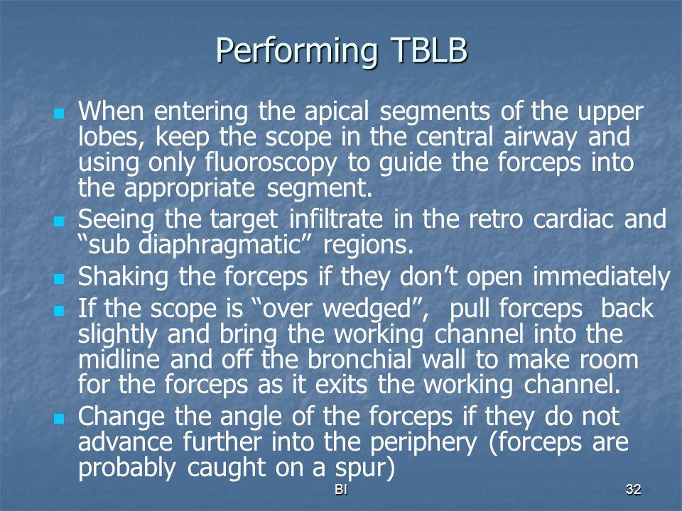 Performing TBLB