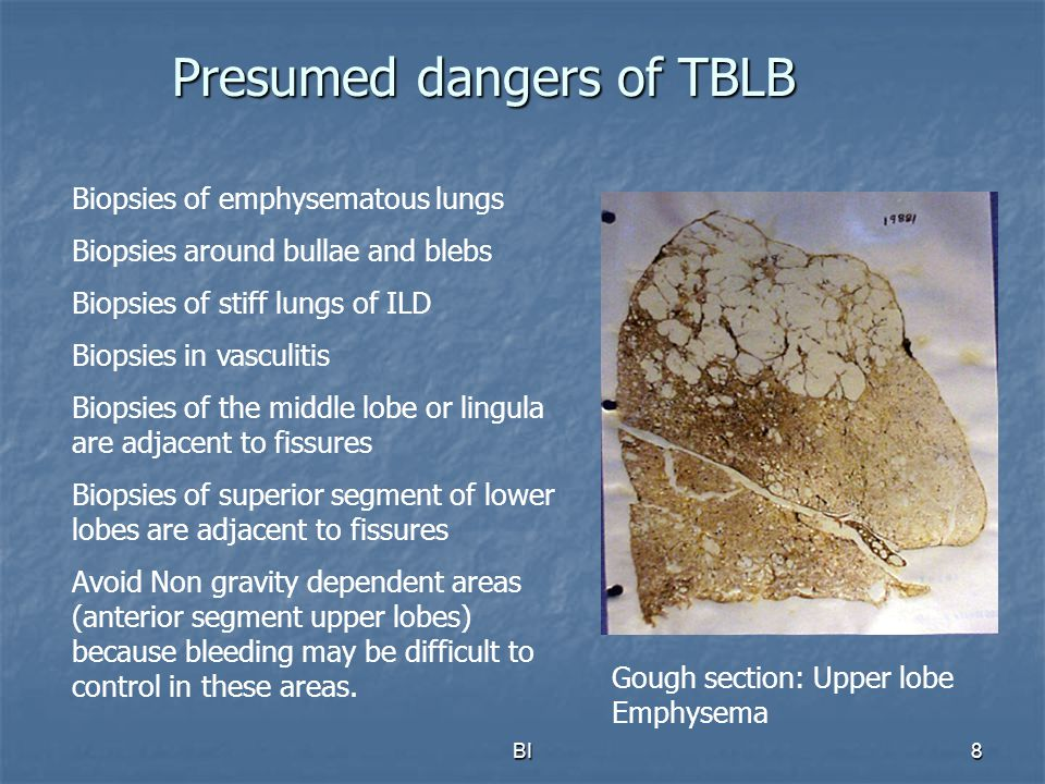 Presumed dangers of TBLB