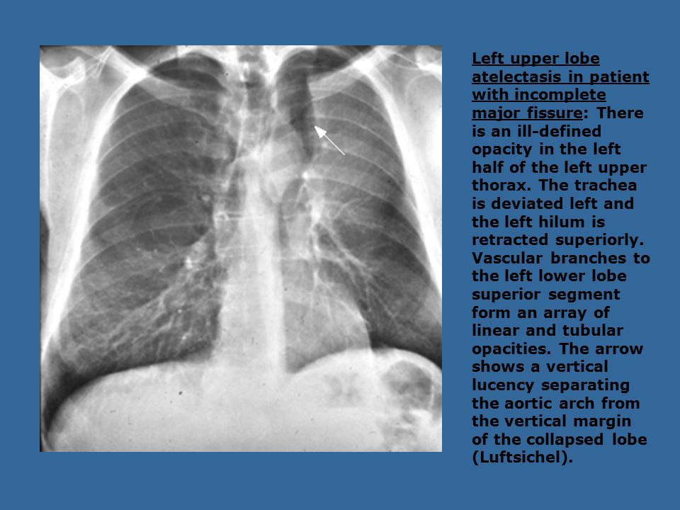 Left upper lobe atelectasis in patient with incomplete major fissure: There is an ill-defined opacity in the left half of the left upper thorax.