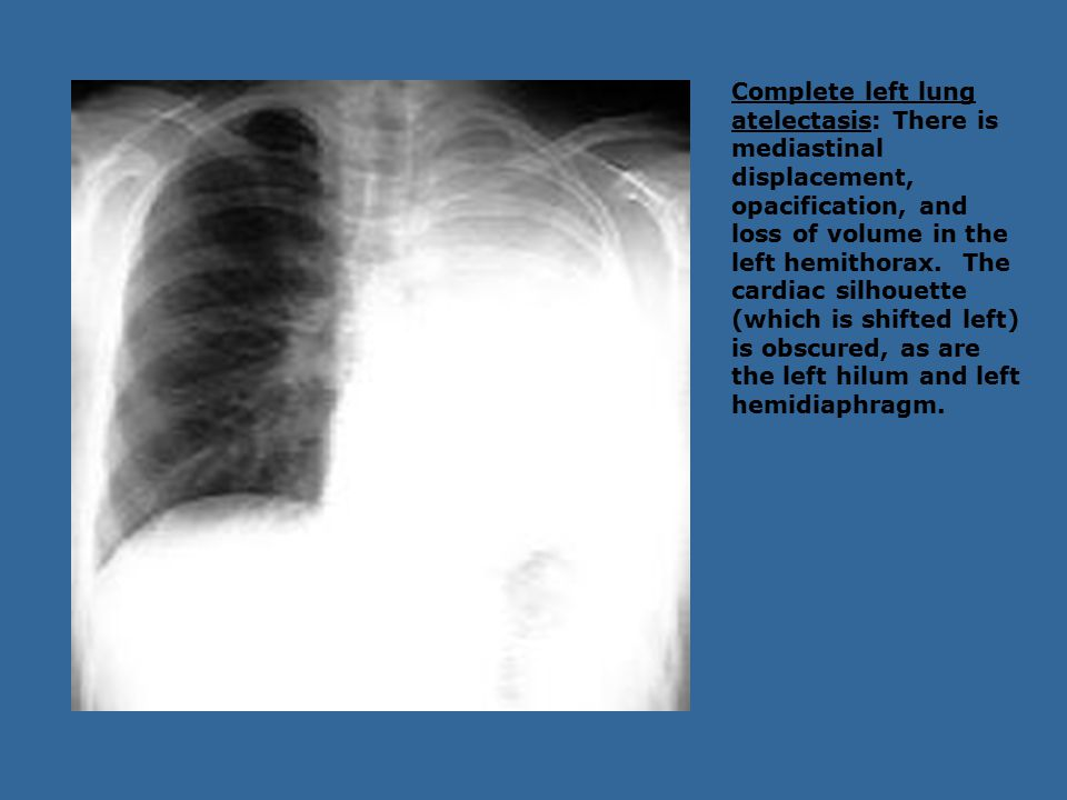 Complete left lung atelectasis: There is mediastinal displacement, opacification, and loss of volume in the left hemithorax.