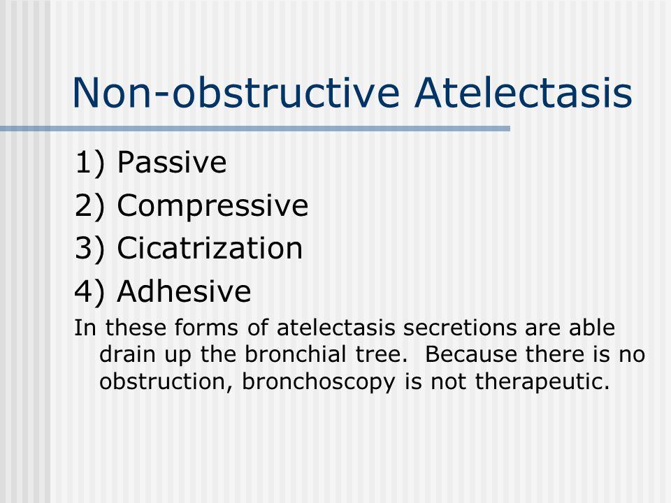 Non-obstructive Atelectasis