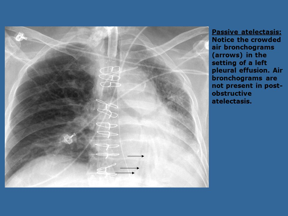 Passive atelectasis: Notice the crowded air bronchograms (arrows) in the setting of a left pleural effusion.