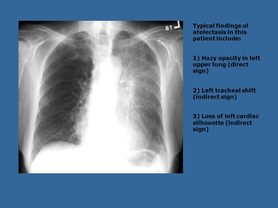 Typical findings of atelectasis in this patient include: