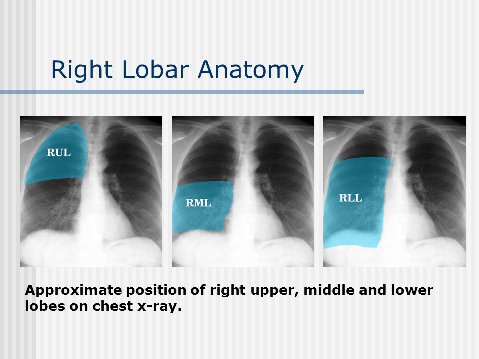 Right Lobar Anatomy Approximate position of right upper, middle and lower lobes on chest x-ray.