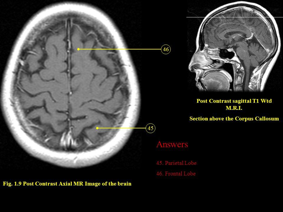 Post Contrast sagittal T1 Wtd M.R.I. Section above the Corpus Callosum