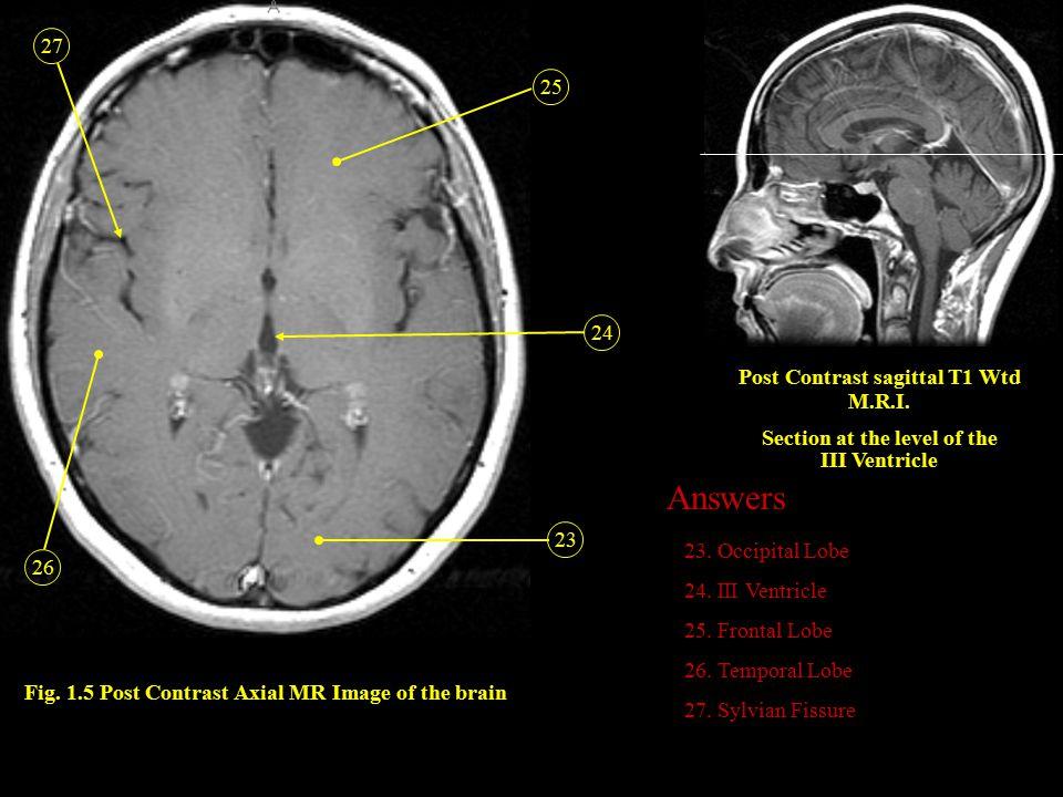 Answers 27 25 24 Post Contrast sagittal T1 Wtd M.R.I.