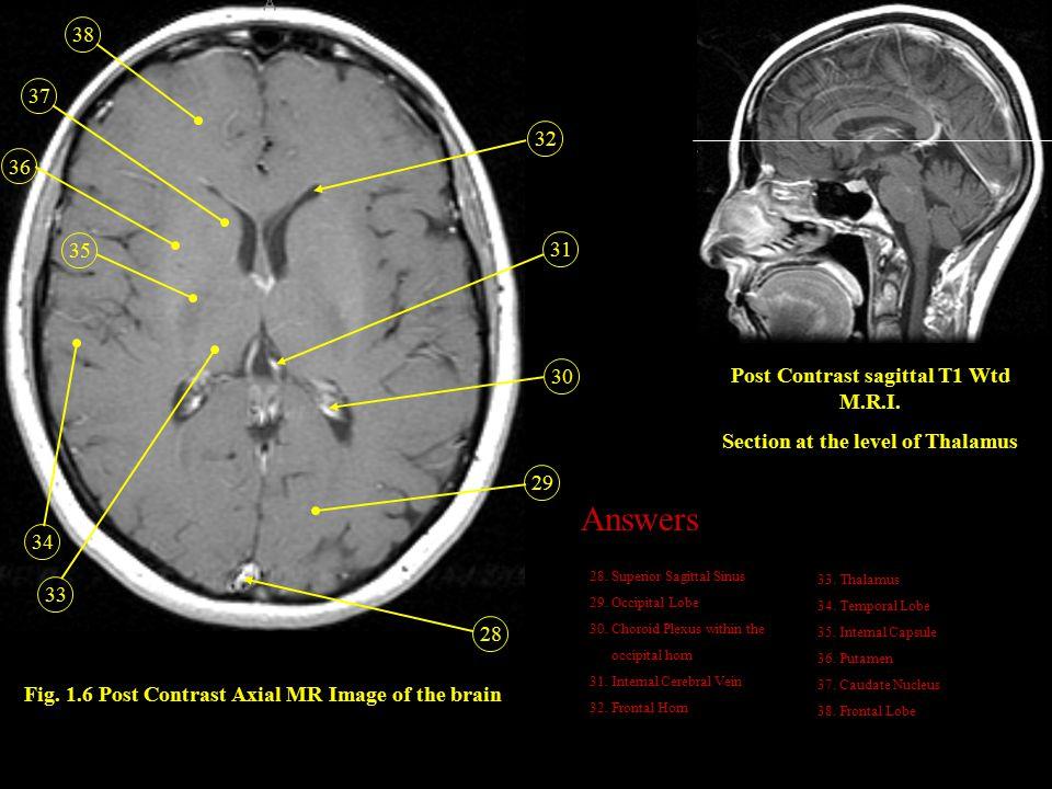 Answers 38 37 32 36 35 31 30 Post Contrast sagittal T1 Wtd M.R.I.