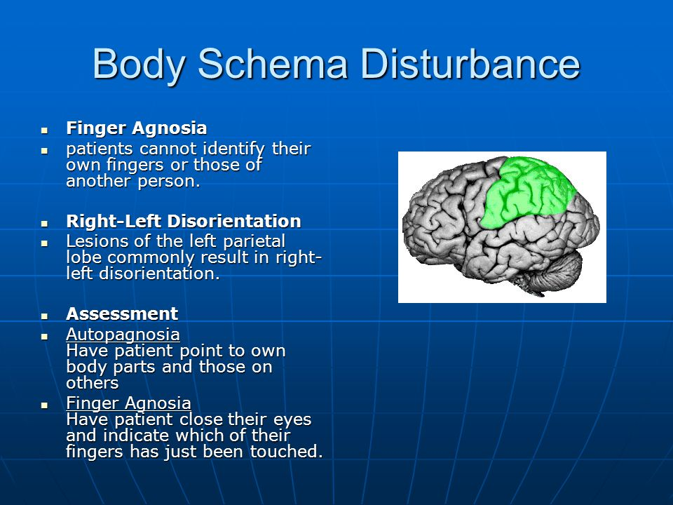 Body Schema Disturbance
