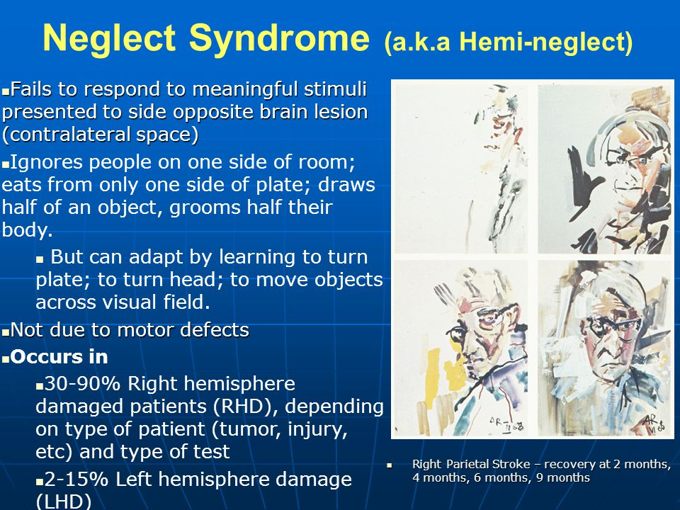 Neglect Syndrome (a.k.a Hemi-neglect)